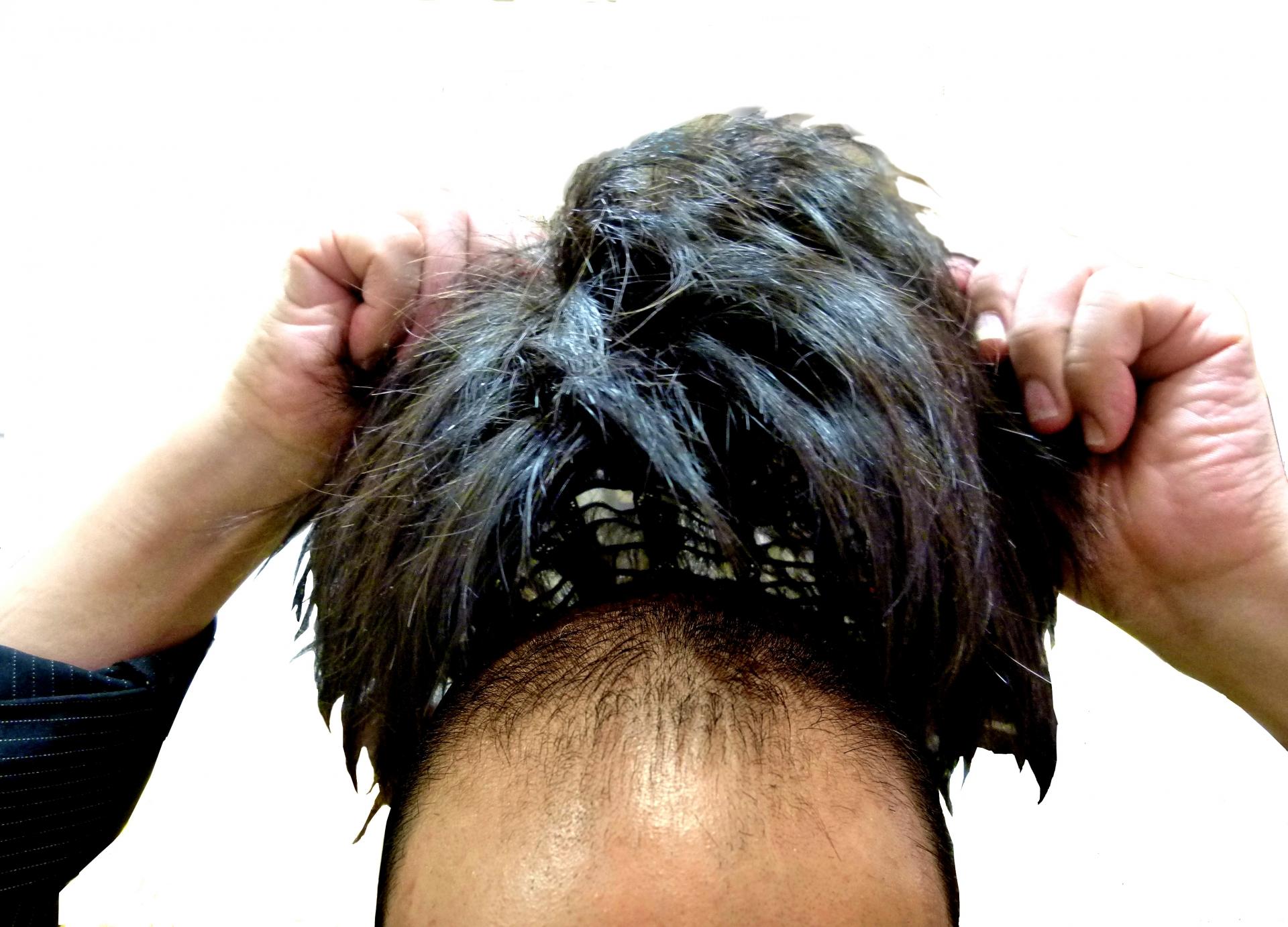 前頭葉の発達とおでこの広さについて。おでこが広いと賢そう!