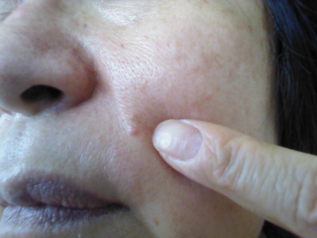 鼻の穴が広がる人の心理や原因を紹介します